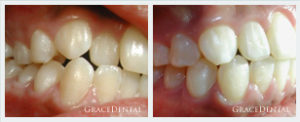 Ortho Cases